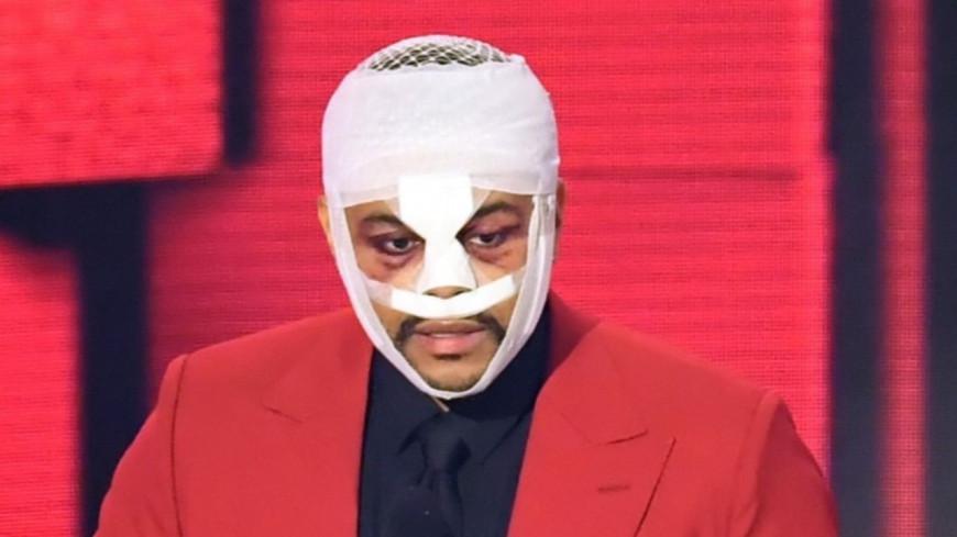 The Weeknd affiche son visage complètement métamorphosé ! (photos)